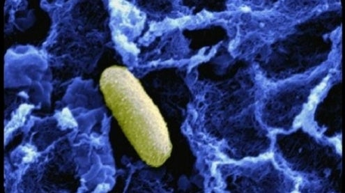 Biofilms: Reprogramming Bacteria to Improve Lives